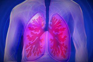 🧡  Asbestosis Síntomas Pulmonares de Asbestosis Pulmonar